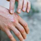Atopický ekzém – problém kůže, který je nutný řešit zevnitř